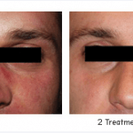 Intense Pulsed Light Rosacea Treatment
