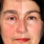 Do I Have Rosacea? Diagnosing Rosacea Correctly