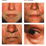 Rosacea Home Treatment Remedies