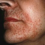 Granulomatous Rosacea Diagnosis and Treatment
