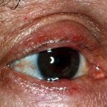 Ocular Rosacea Studies Report Findings