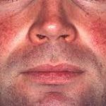 How serious is the skin condition Rosacea