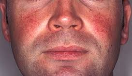 how serious is rosacea
