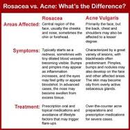 rosacea vs acne